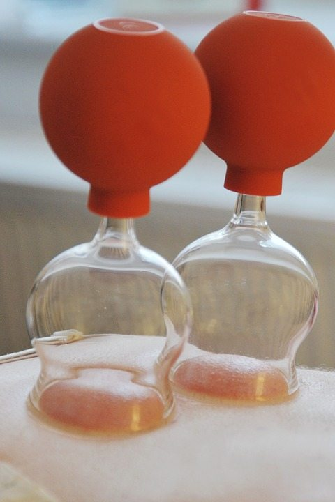Cupping for muscular pain